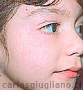 Hemangioma facial