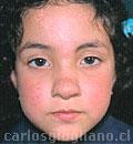 Hemangioma Nasal