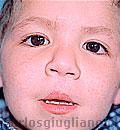 labio Leporino Bilateral