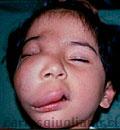Malformación Linfática Facial