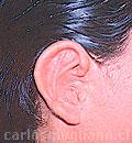 Microtia o Agenesia del Oído